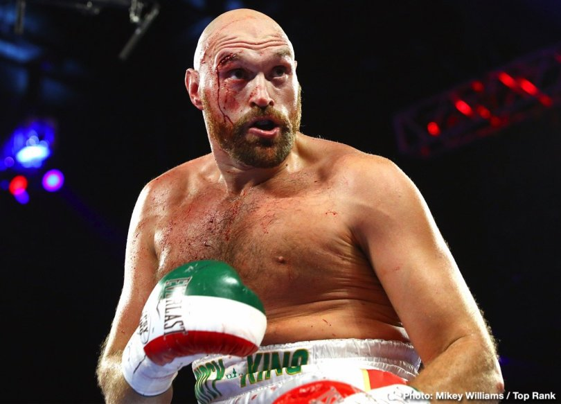 0-Tyson_Fury_bleeding